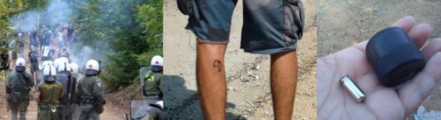 Riot Police using teargas on protesters (left); Protester showing a scar from a plastic bullet used by police (center); A plastic bullet found in Skouries (right). (All photos via antigold.wordpress.com)